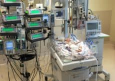 Our Newborn's Heart Surgery and How we Survived 11